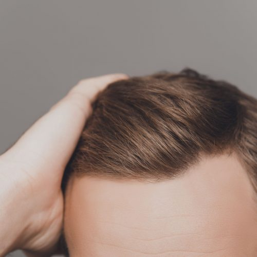 What are the Pros and Cons of Hair Transplant?